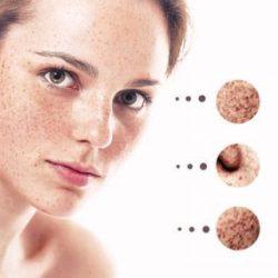 DermEsthé Huid & Laser Kliniek: pigmentvlekken behandelen en verwijderen, pigmentvlekken laseren in Het Gooi, Huizen en Laren